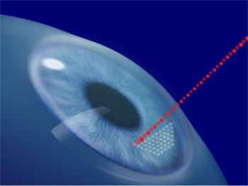 Click to enlarge photo of IntraLase All-Laser No-Blade LASIK Flap Creation